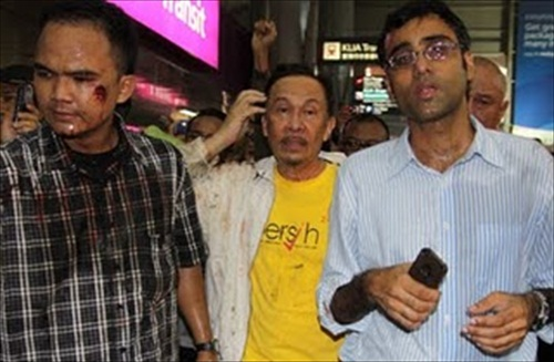 Opposition Anwar Ibrahim &amp; his bodyguard hurt by tear gas