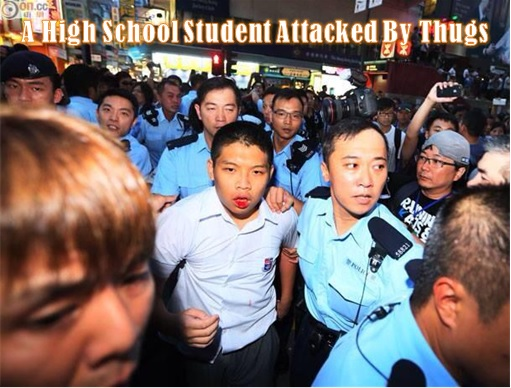 A High School Student Attacked by Thugs