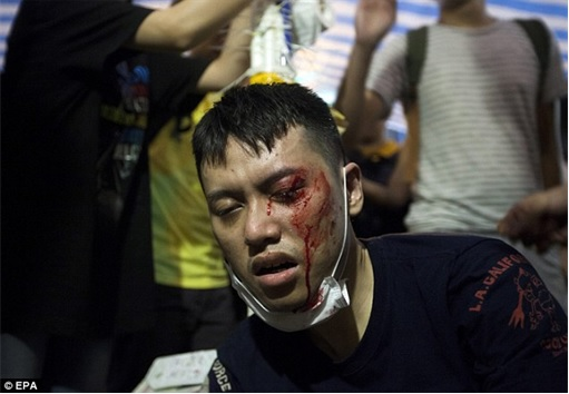 Some pro-democracy protesters who were attacked by gangster in Mong Kok - 1