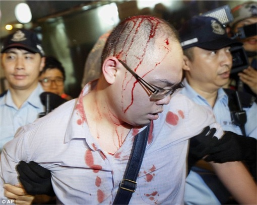 Some pro-democracy protesters who were attacked by gangster in Mong Kok - 2