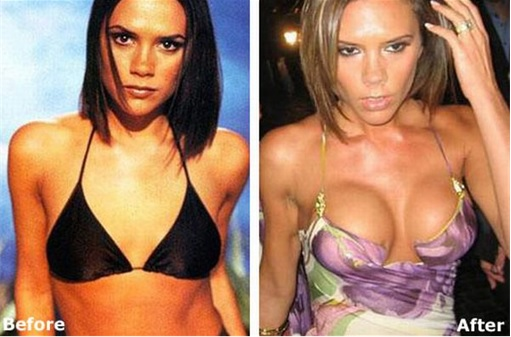 Breast Enlargement - Victoria Beckham