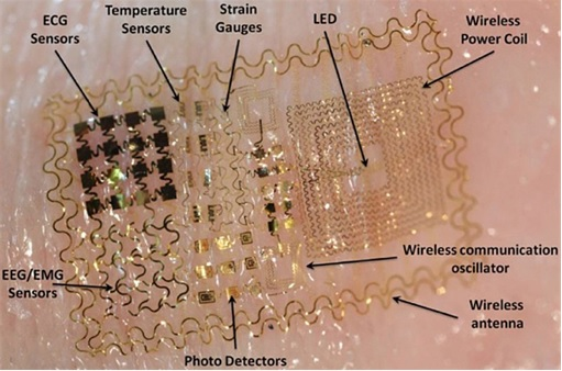 Identification Implant - Silicon Chip Components