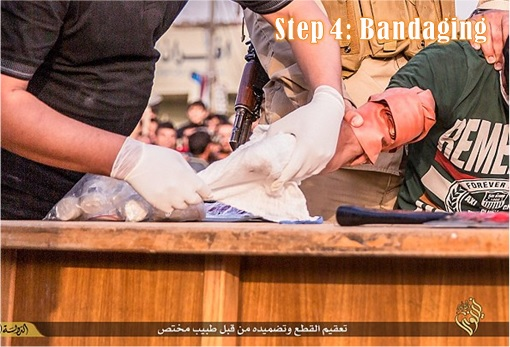 ISIS Hacking and Chops Off Hand - Step 4 - Bandaging