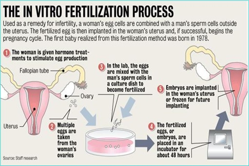 whats in vitro fertilization Invitro fertilization ( ivf ) is a technique in which egg cells are fertilized by sperm outside the woman's womb ivf is a major treatment in infertility when other methods of achieving conception have failed.