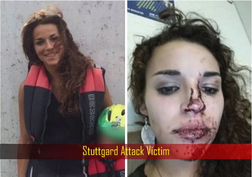 Germany Stuttgard Under Attack - Victim - Bloodied Mouth and Nose