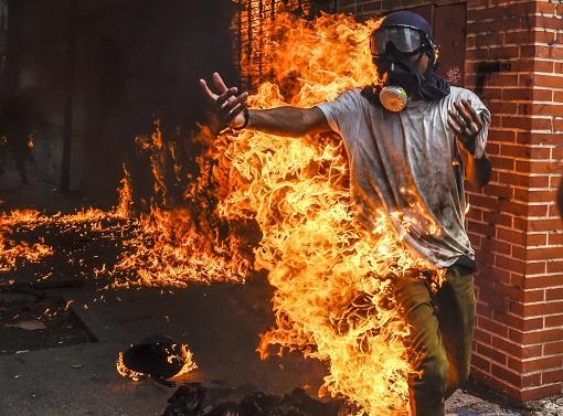 Venezuela Protester Burnt in Fire