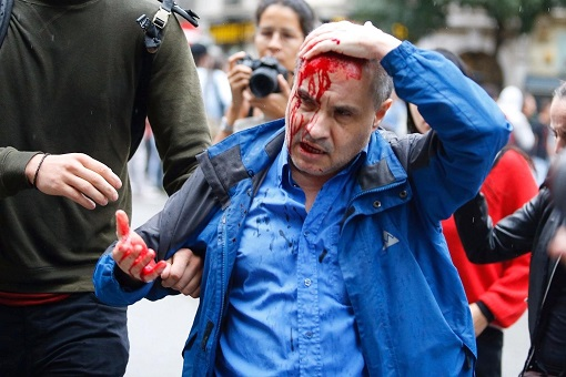 Catalonia Independence Vote - Police Brutality - Bloodied Head