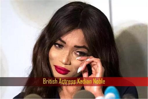 British actress Kadian Noble