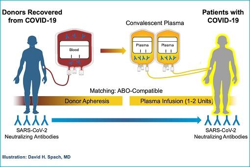 Coronavirus - Convalescent Blood Plasma Treatment - Illustration